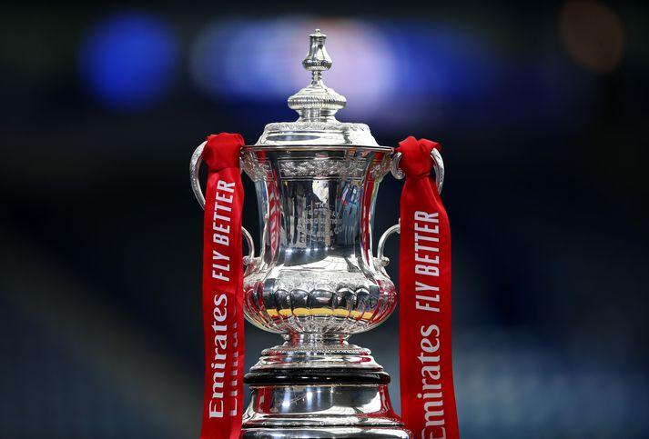 Chelsea og Leicestermætast í úrlsitaleik FA bikarsins í dag.