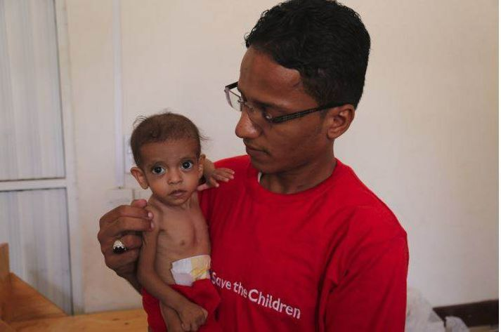 Átta mánaða gömul stúlka sem komið var með á heilsugæslustöð Barnaheilla - Save the Children í Jemen.