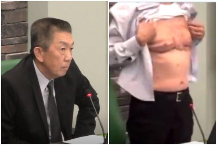 Lee Wong sýnir örin sem hann hlaut þegar hann þjónaði í bandaríska hernum.