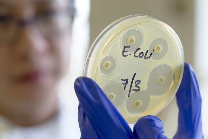 E.coli bakterían er rakin til Efstadals II en beðið er nú niðurstaðna úr faraldsfræðilegum rannsóknum á tengslum þessara einstaklinga við bæinn.