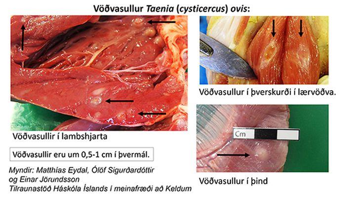 Hér má sjá einkenni vöðvasulls.