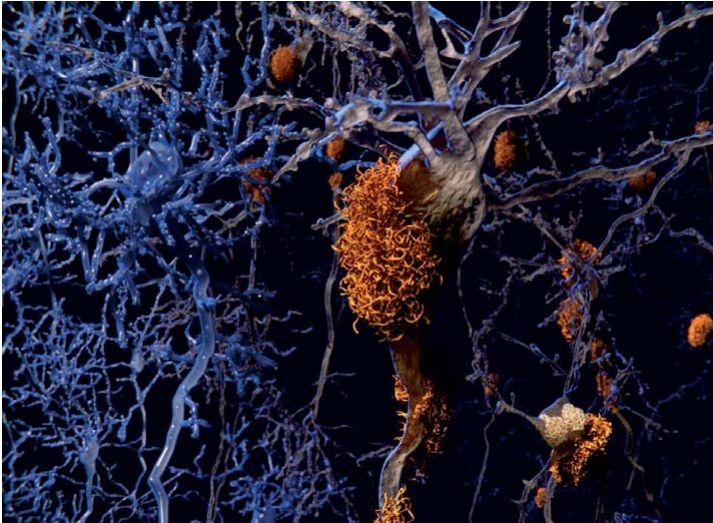 Heilafrumur með útfellingar eru til hægri. Þetta fyrirbæri er eitt af megineinkennum Alzheimer.