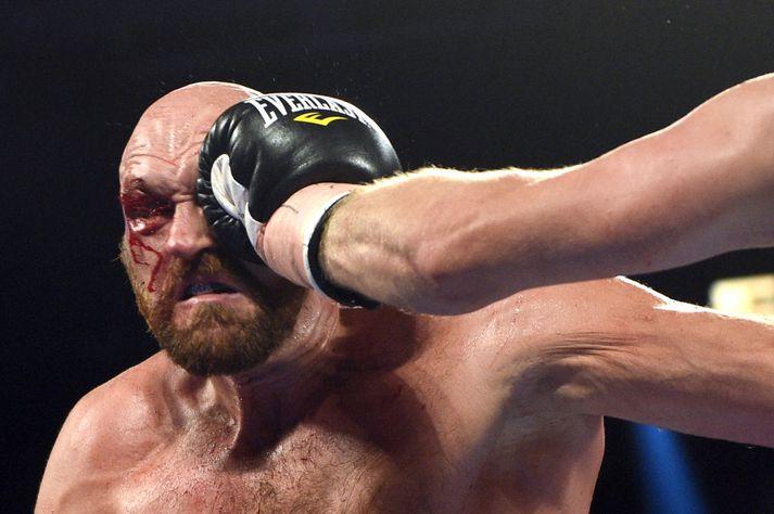 Dana White telur að Fury yrði bara laminn í UFC.
