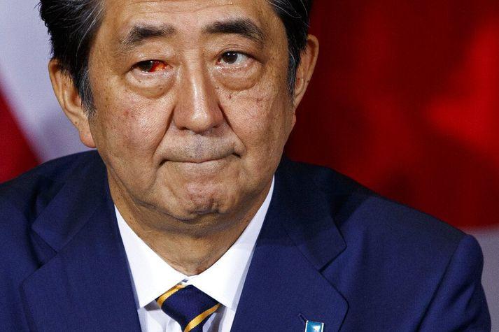 Shinzo Abe á fundi með Bandaríkjaforseta í september í fyrra. Abe hefur verið heilsuveill og talið er að hann muni segja af sér af þeim sökum í dag.