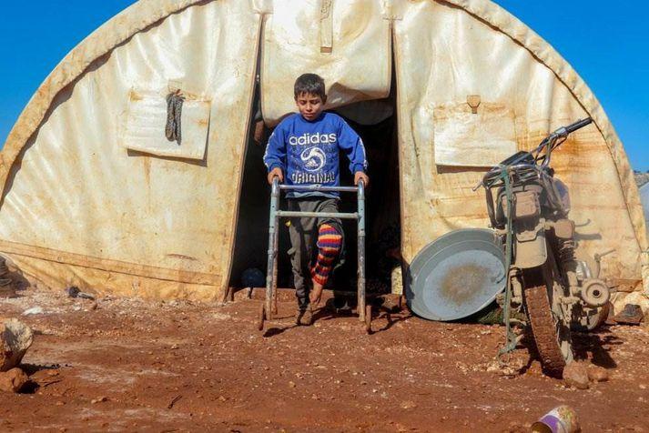 Átta ára drengur í Idlib, Sýrlandi sem slasaðist á fæti og maga í sprengjuárás á húsið hans. Fjölskylda hans lagðist á flótta eftir árásina og býr núna í flóttamannabúðum í Idlib. Ljósmynd: Save the Children